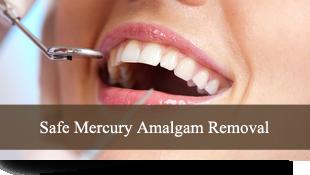 Sae Mercury Amalgam Removal